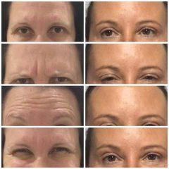 Facial Enhancements